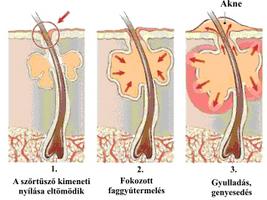 Az akne és kezelése – Bőrgyógyász rendelés | Dr. Thoma Mónika