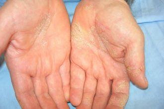 papilloma a torok eltávolításában hpv és nyaki rák tünetei